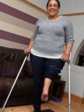 """女子大腿截肢后反转接回 小腿翻转180度脚跟变""""膝盖"""""""